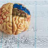 長引くうつ病に効くと話題の「経頭蓋磁気刺激(TMS治療法)」はどこまで役に立つのか?現段階での見解